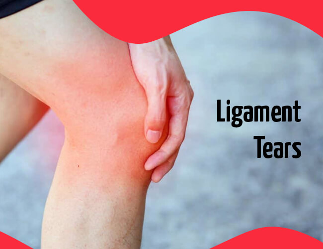 Ligament Tears
