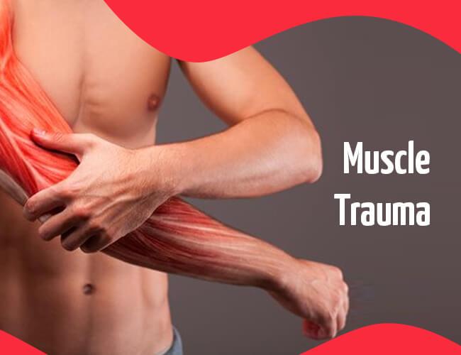 Muscle Trauma